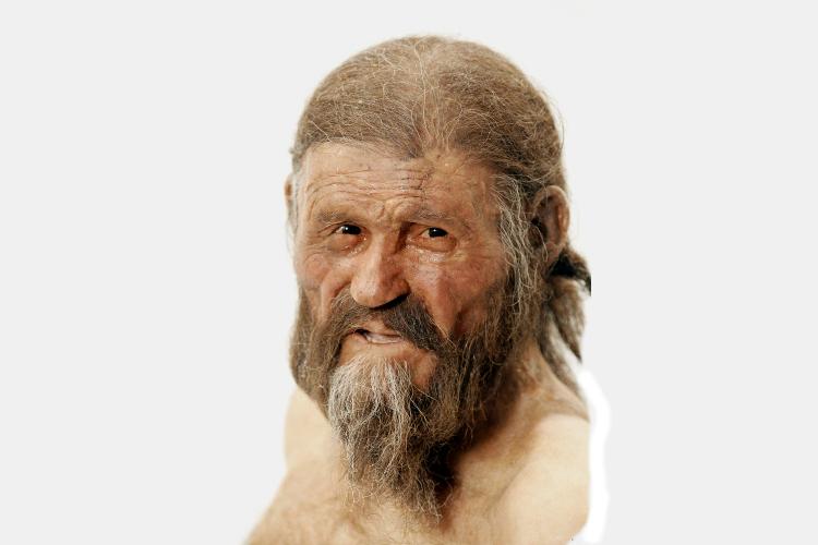 Otzi The Iceman, la momia con enfermedad genética