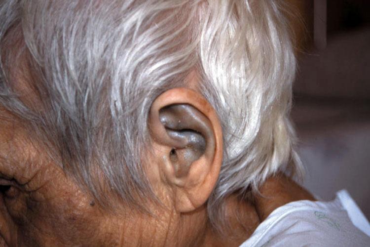 Alcaptonuria, la enfermedad de los huesos negros