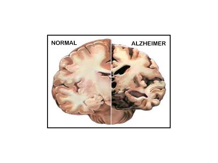El Alzheimer ¿es contagioso o no?