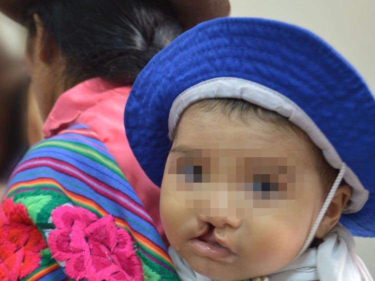 Más de 4.500 cirugías plásticas en niños gratis