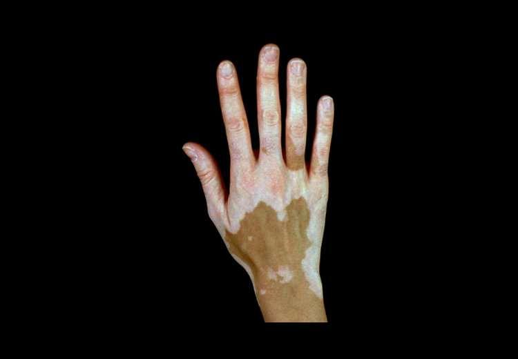La limpieza de cutis por el láser de las manchas de pigmento