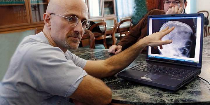 Médico italiano se prepara para trasplante de cabeza