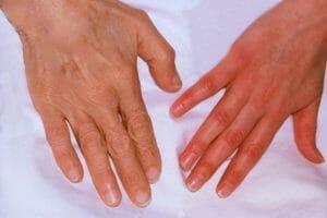 Anemia por falta de hierro – Una causa no detectada