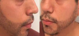 Trasplante de barba – una moda nueva