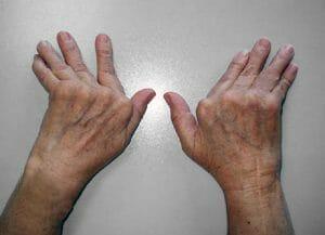Qué es la artritis - La artritis inflamatoria afecta partes del cuerpo que no imagina