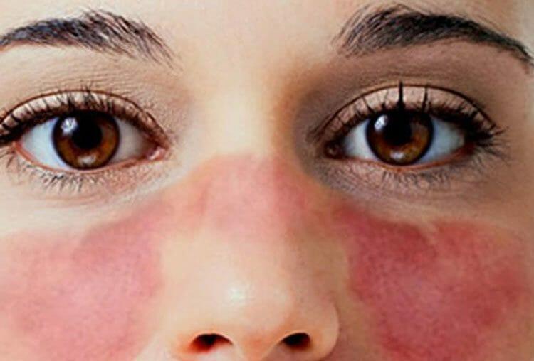 Qué es Lupus - síntomas - ¿Qué lo provoca? - tipos - ¿Es contagioso?