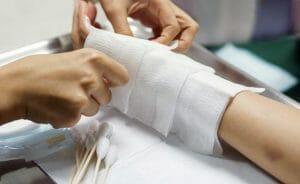 Impresora 3D portátil para heridas de la piel