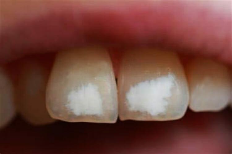 Manchas blancas en los dientes ¿Qué hacer?